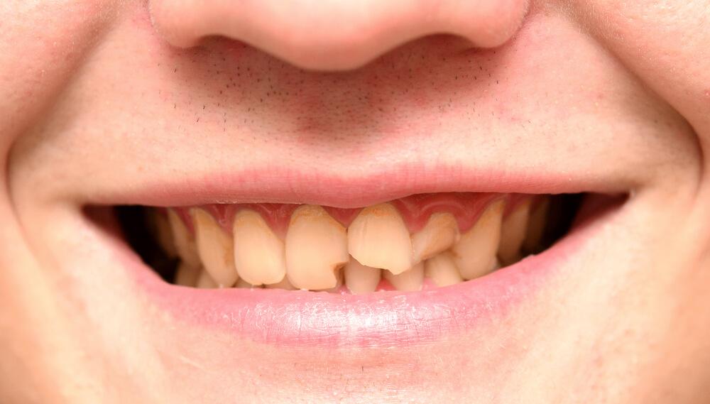 temporary filling for broken tooth